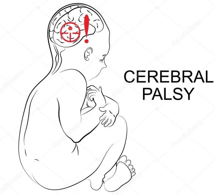 depositphotos_94208752-stock-illustration-cerebral-palsy-neurology